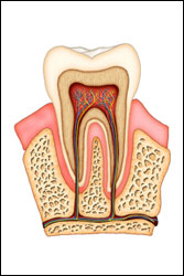 Root-Canal(