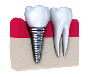 Slidell Dental implants